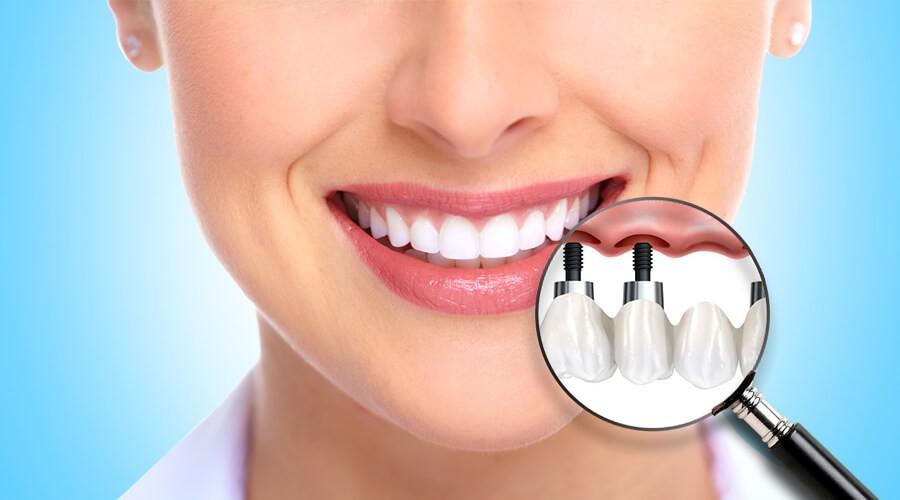 Удаление зубов и последующая имплантация