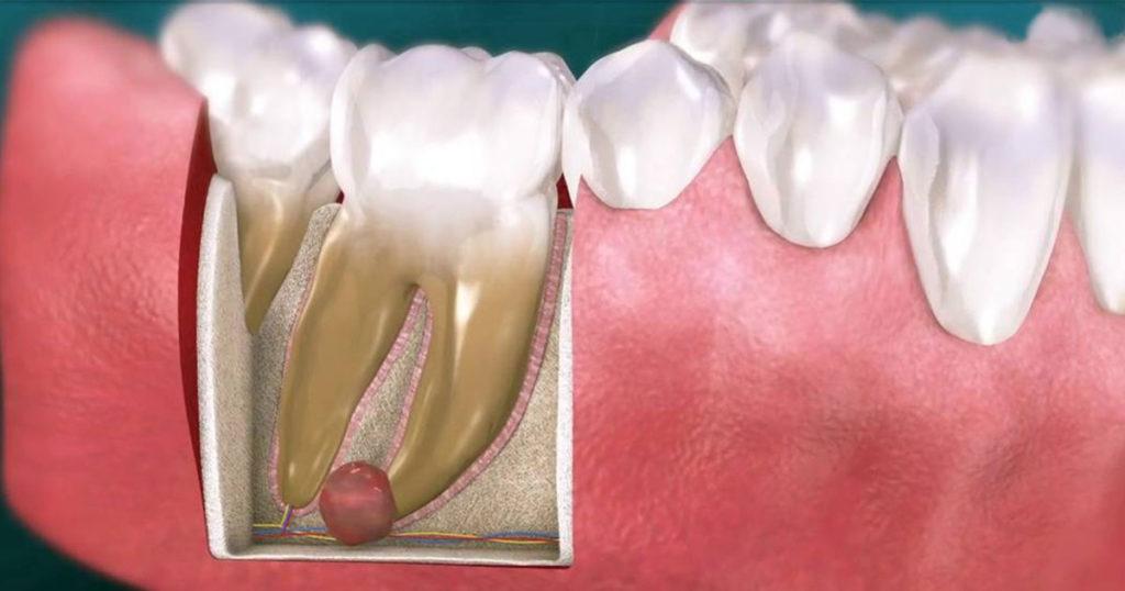 Лечение и удаление «кисты» зуба